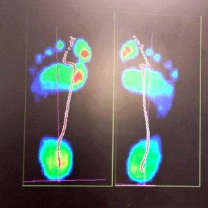 scan image of a pair of feet showing pressure points